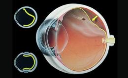 dezlipire de retina